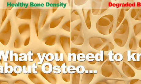Osteoporosis Bone Density